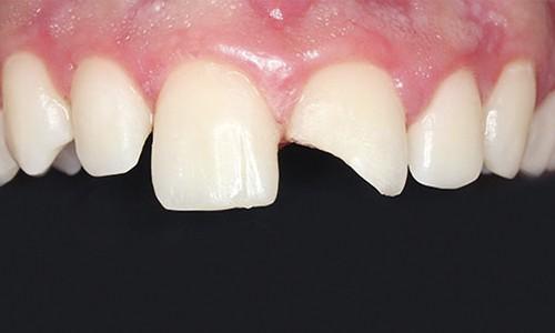 protector de dientes